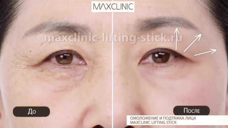 ХИТ ПРОДАЖ. Анти-возрастной стик, для кожи лица.