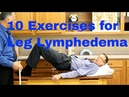 10 Exercises for Leg Lymphedema (Swelling or Edema of the Lower Extremities)