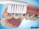 Как правильно чистить зубы с брекет системой