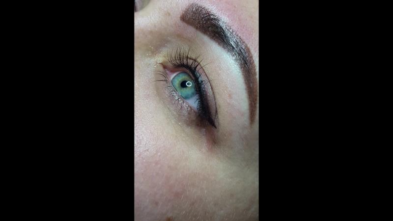 Очаровательные глазки 🍓  📌 сразу после процедуры 📌 без отёка 📌 без крови Запись по 📲 066-477-29-76 071-367-03-80