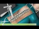 Исправление сколиоза хирургическим путем