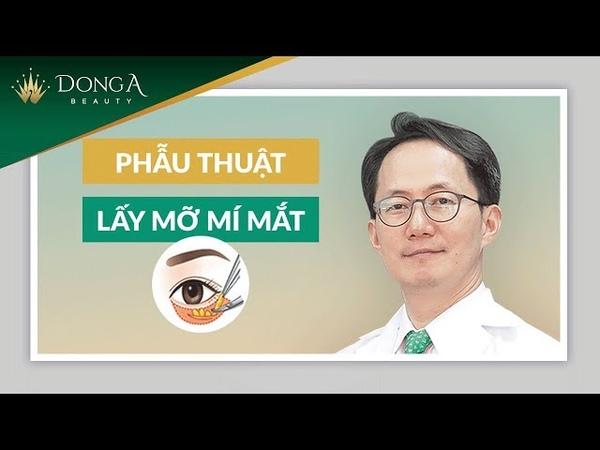 Mô phỏng quy trình lấy mỡ mí mắt trên dưới tại TMV Đông Á