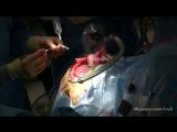 Хирургическое лечение эпилепсии