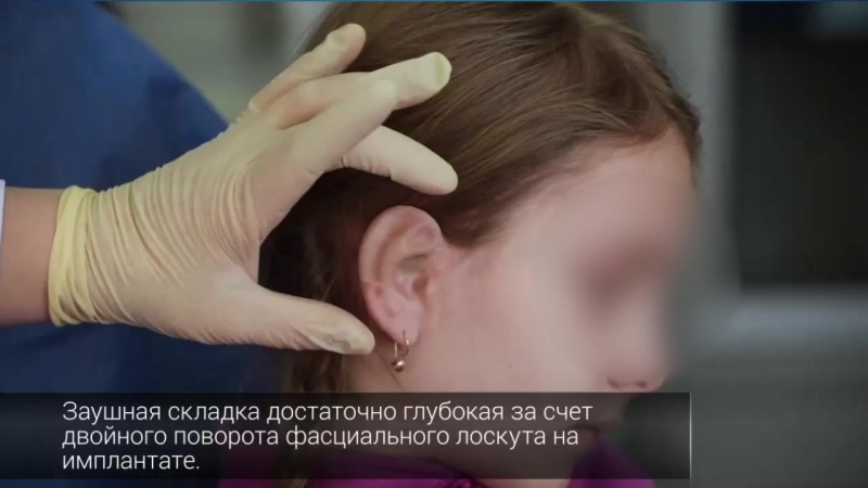 Реконструкция ушных раковин д м н Чкадуа Тамара Зурабовна