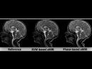 Phase‐based amplified MRI aMRI