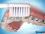 Как правильно чистить зубы с брекет-системой?