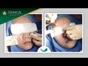 Quy trình Điều trị sẹo lõm lâu năm trên mặt tại TMV Đông Á