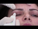 Non surgical Blepharoplasty 1