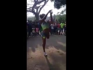 dancing amputee