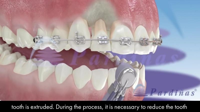 Orthodontic extrusion. Пропедевтика ортодонтии.