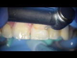 Реставрация зуба 11,21. Др. Hussein Naama (Ирак)