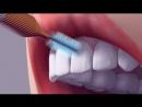 Как правильно чистить зубы обычной щеткой