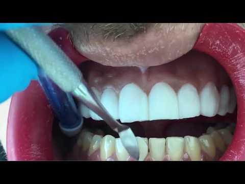 Восстановление 20 зубов винирами Терапевтические виниры Реставрация зубов