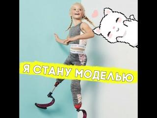 Она потеряла ноги, но стала крутой!