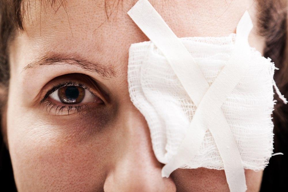 Как лечить травму глаза?