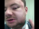 Бывший депутат краевого парламента сломал челюсть DJ Smash