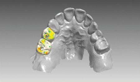 Что такое цифровая стоматология