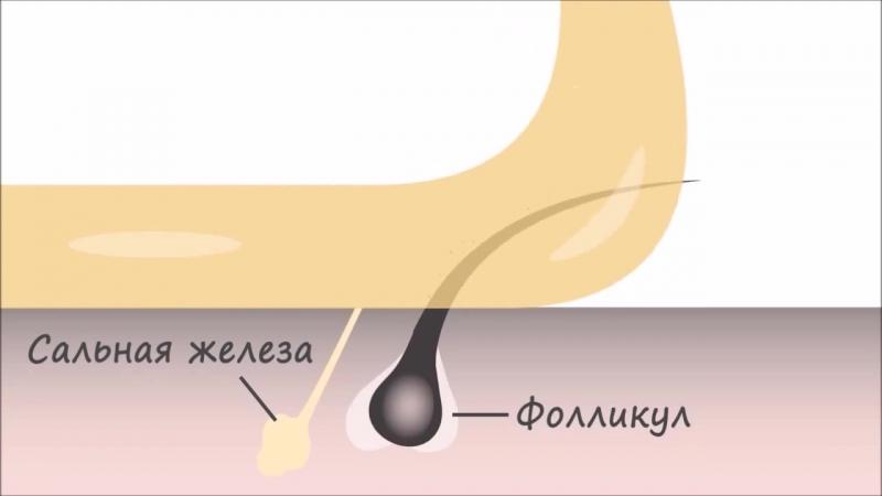 Преимущества шугаринг депиляции перед восковой