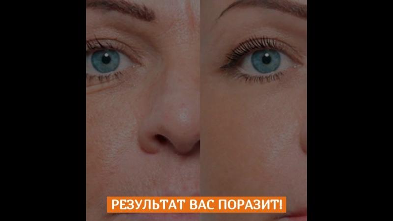Естественное омолаживание кожи