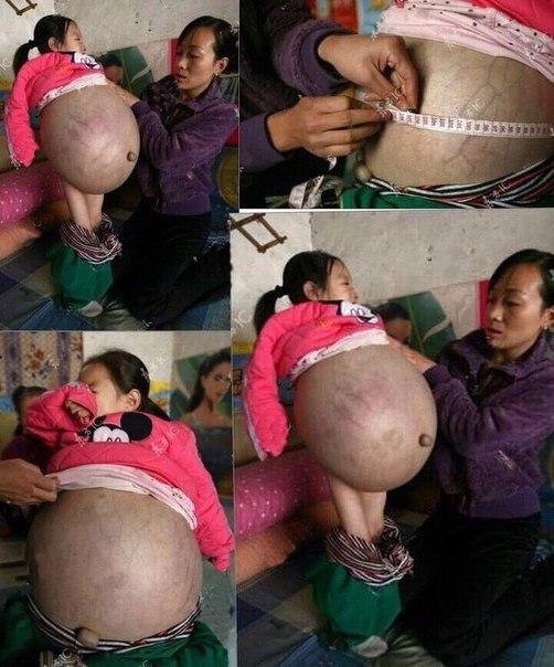 Родители этой девочки из Лаоса