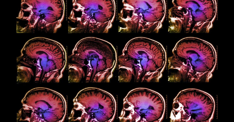 снимки головного мозга на мрт