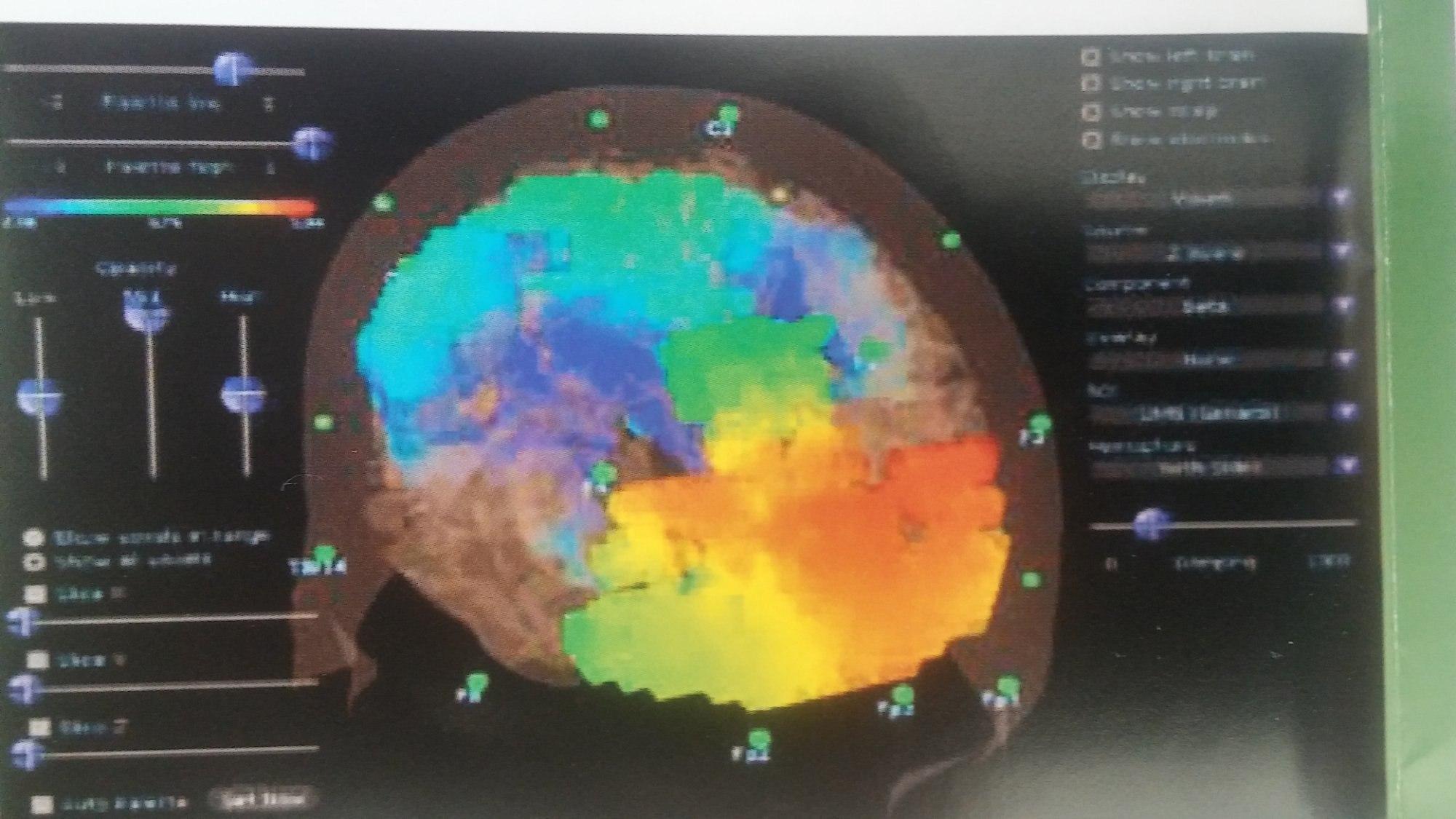 активность мозга на мрт