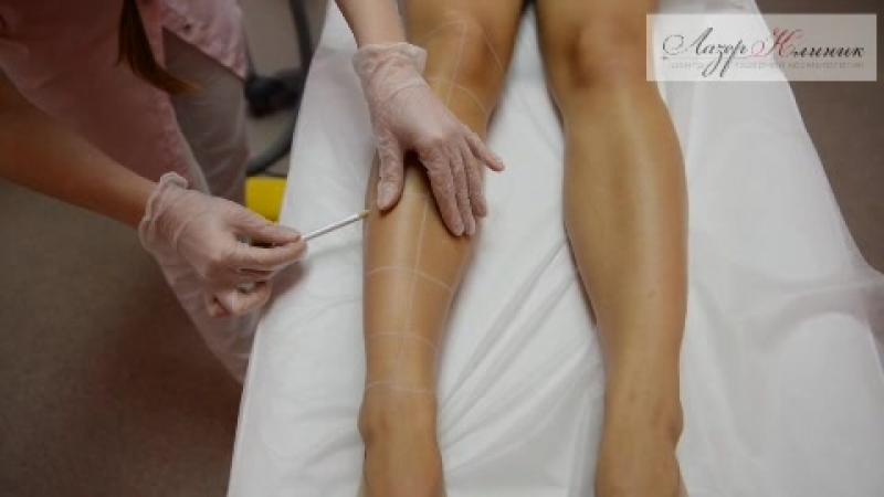 Эпиляция александритовым лазером (лазерная эпиляция) в Лазер Клиник