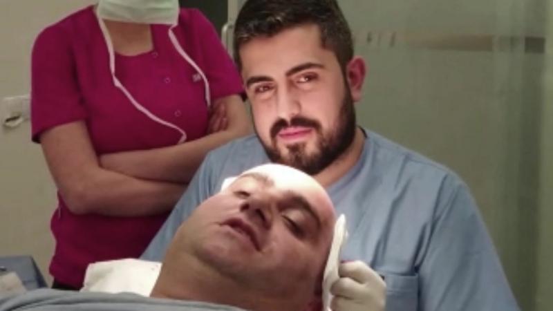 Пересадка волос в Турции,с пациентом из Москвы