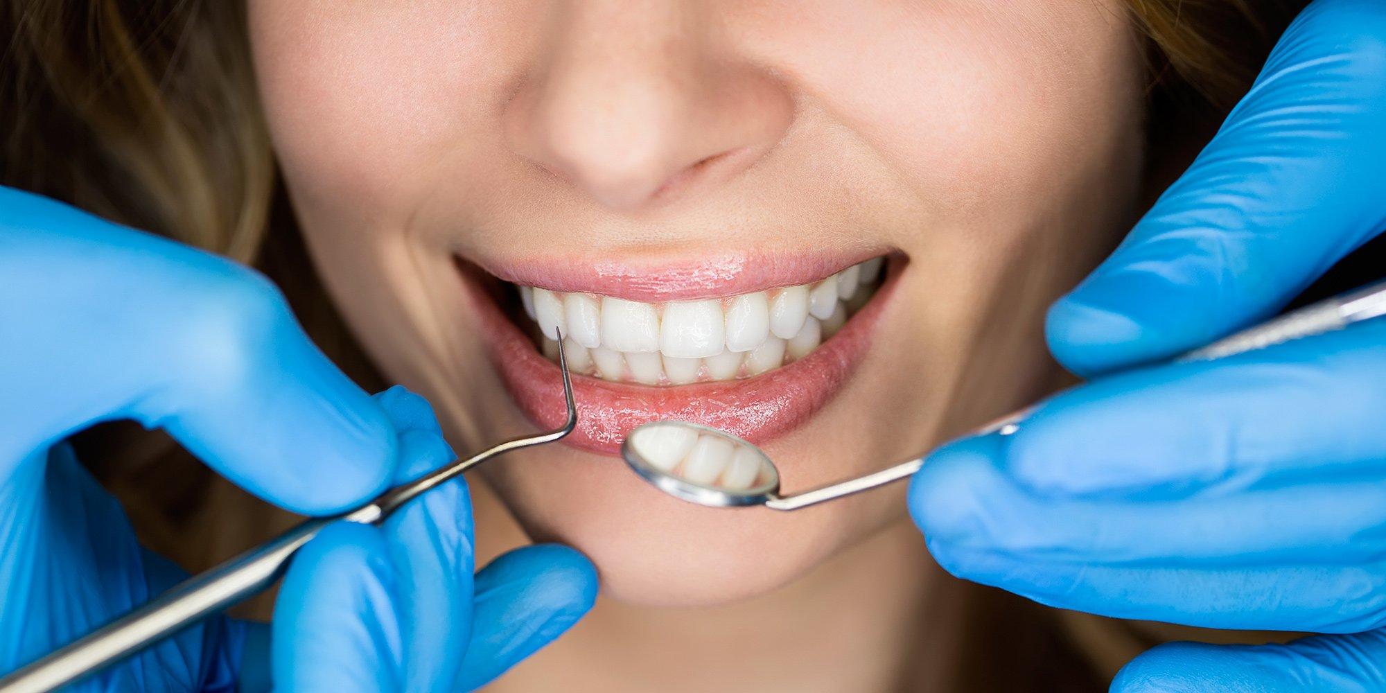 Каковы различные типы косметической хирургии для зубов?