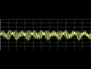 Hypertension high blood pressure rife frequencies