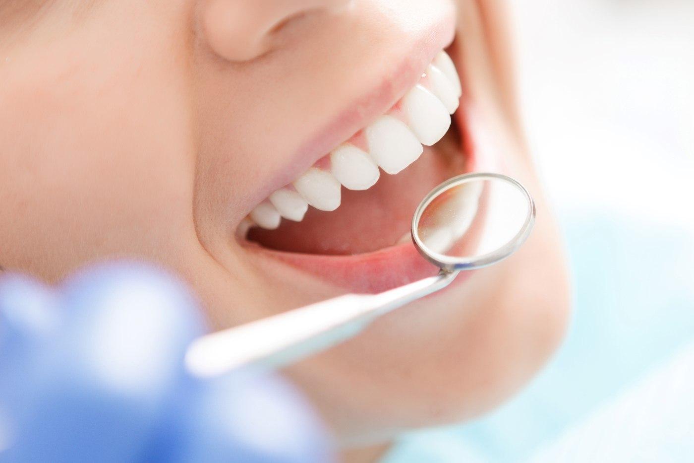 Что входит в стоимость стоматологических имплантатов?