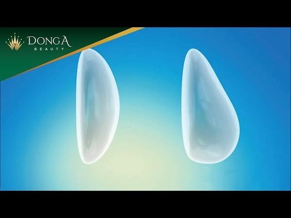 Nâng ngực nội soi sử dụng túi ngực an toàn Microthane