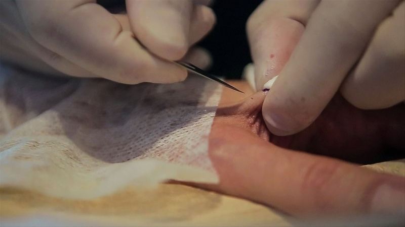 Watch Artist Implant a Net Art RFID Chip Into His Hand
