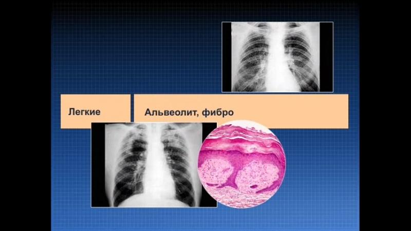 9 Внекишечные проявления ВЗК и осложнения