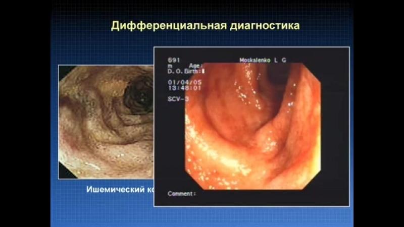 Диагностика ВЗК и наблюдение гастроэнтерологом © inflammatory bowel disease.mp4
