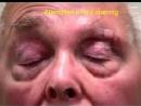апраксия открывания глаз