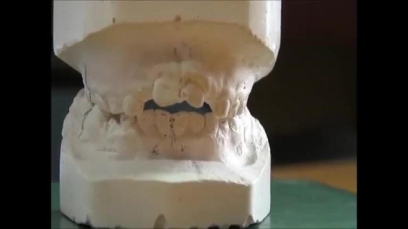 Диагностика открытого прикуса. Пропедевтика ортодонтии.