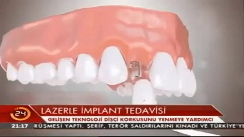 Www.planetamedikal.org На центральном телеканале в Турции TV 24 наш доктор Turhan Guldas был в главных новостях 📺