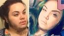 Bearded lady polycystic ovary syndrome makes woman grow facial hair boyfriend loves it TomoNews