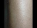 Электроэпиляция голени. Волос не так много, поэтому время работы всего лишь 1 час 🤗 Обезболивание спреем лидокаин. -