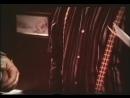 Паркинсонизм акинезия мышечная ригидность © Parkinsonism akinesia muscle rigidity