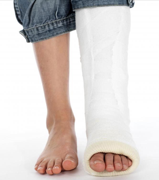 как лечат поперечный перелом