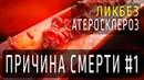 ПРИЧИНА СМЕРТИ 1 | Ликбез: Атеросклероз