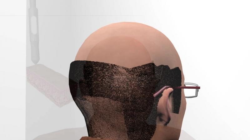 Shifahair клиника по пересадке волос