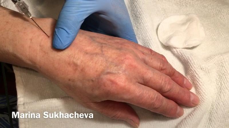💉Омоложение кистей рук , канюльная техника без крови, синяков и боли 👍
