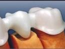 Безметалловое протезирование на основе диоксида циркония