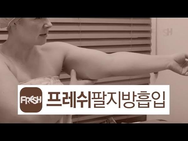 프레쉬성형외과 외국인환자(얼굴,팔 지방흡입)(Foreigner Patient_Face fat liposuction, Arm Liposuction)