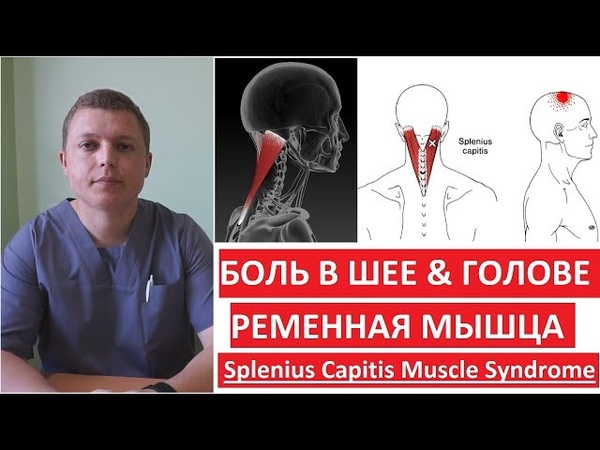 Ременная мышца | Как лечить боль в шее и голове | Splenius Capitis Muscle Syndrome