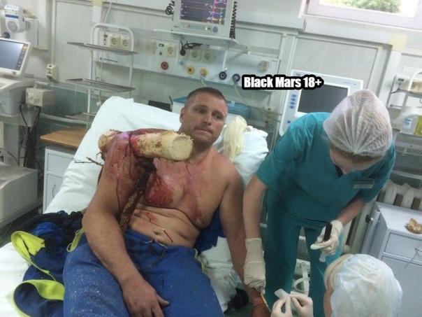 Плечо мужчины насквозь пробило бревно.