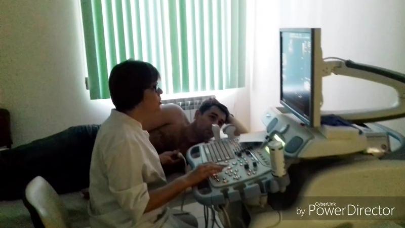 узи сердца на ультразвуковом сканере VIVID 7